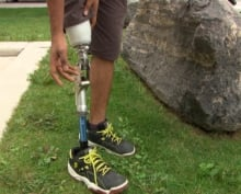 Selvan Mohan prosthetic leg money raise Ottawa student Aug 27 2014