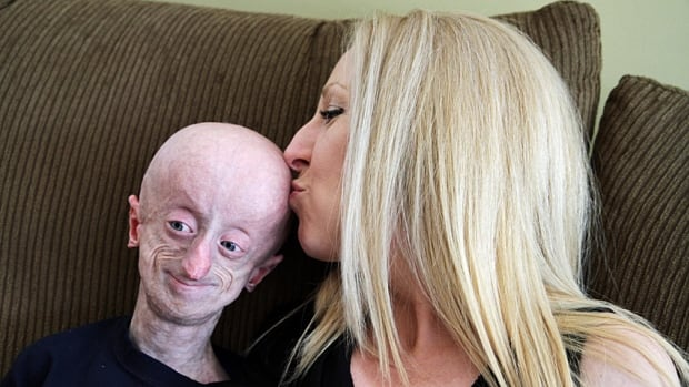 Devin Scullion and his mom, Jamie Madley, have been through a lot over his lifetime. The Hamilton teen just celebrated his 18th birthday, which is much longer than anyone expected him to live. Scullion has progeria, a rare genetic disorder that causes rapid aging.