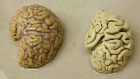 Alzheimer's disease brains