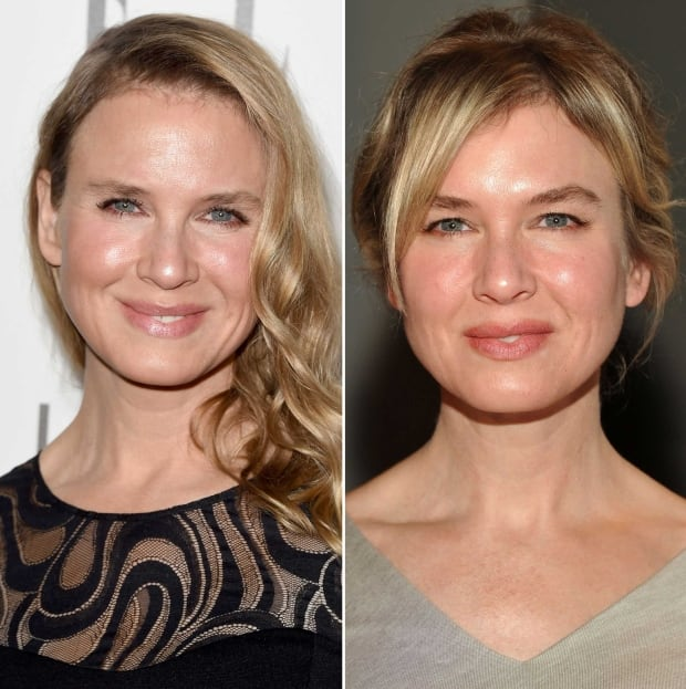 Renee Zellweger Stuns Fans With Unrecognizable Face