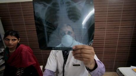 India World Tuberculosis Day