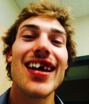 Tim Nolte lost teeth