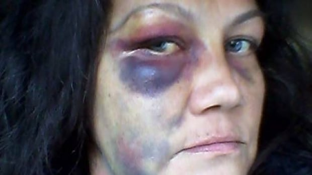 Lana Sinclair alleges the injuries on her face are the result of police brutality she experienced when officers showed up at her house on Halloween.