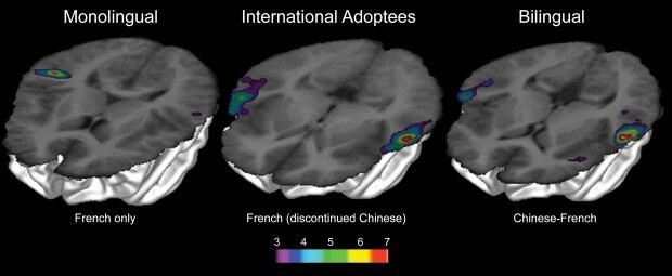 Brain activation patterns language