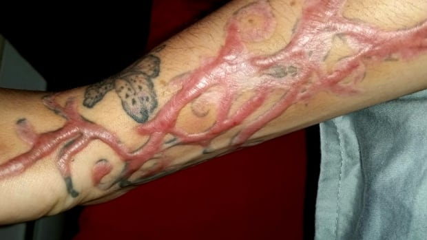 Tattoo removal ink colors