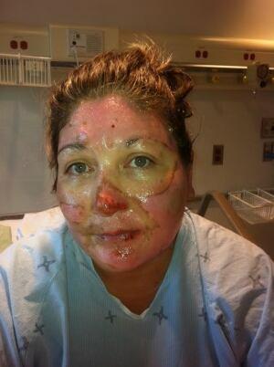 Kim Janvier refinery explosion injuries