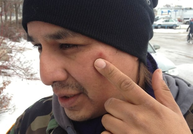 Simon Ash-Moccasin shows a mark on his face