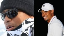 Tiger Woods's tooth knocked out by cameraman