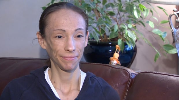 Alheli Picazo, 30,  who suffered from a severe gastro-intestinal condition for many years, now needs $100,000 worth of dental surgeries to fix the damage it caused to her teeth and jaw.