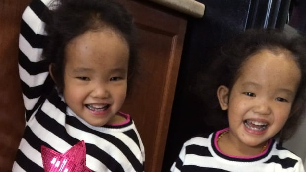 Binh Wagner, left, could die if she doesn't receive a liver donation, as her sister Phuoc did. Their father has already donated a portion of his liver to Phuoc in surgeries performed in Toronto.