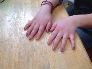 Julie Abrahamsen bruised fingers