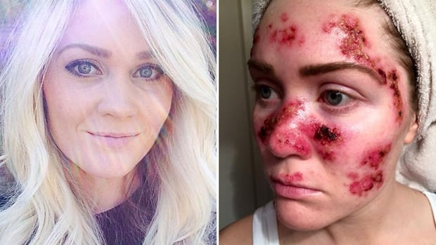 At just 27 years old, Alabama nurse and new mom Tawny Willoughby has been diagnosed with skin cancer six times. She blames her former tanning bed habit, and wants to prevent others from making the same mistake.