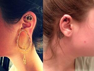 Leanna Richard ear fix surgery