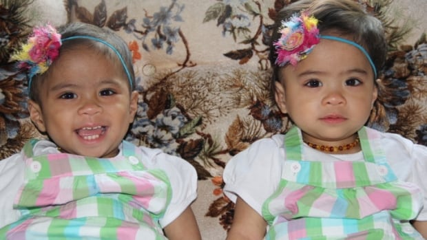 Zoey and Zayne Espayos beat a rare genetic blood disorder and just turned two years old.