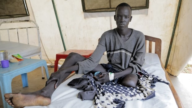 Banywich Bone, 18, had his left leg amputated after a severe infection which developed following a snake bite in South Sudan in July. Doctors Without Borders says the world will run out of one of the most effective treatments for snakebites next year.