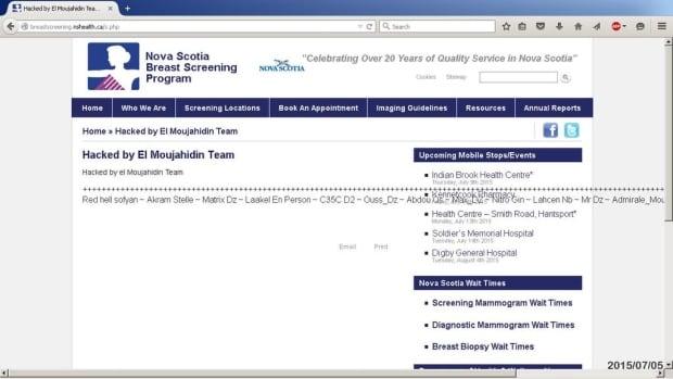 Breast screening nova scotia