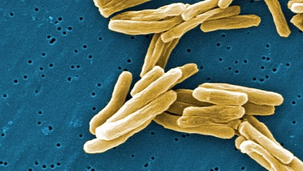 The Mycobacterium tuberculosis (TB) bacteria is shown in a high magnification scanning electron micrograph image.