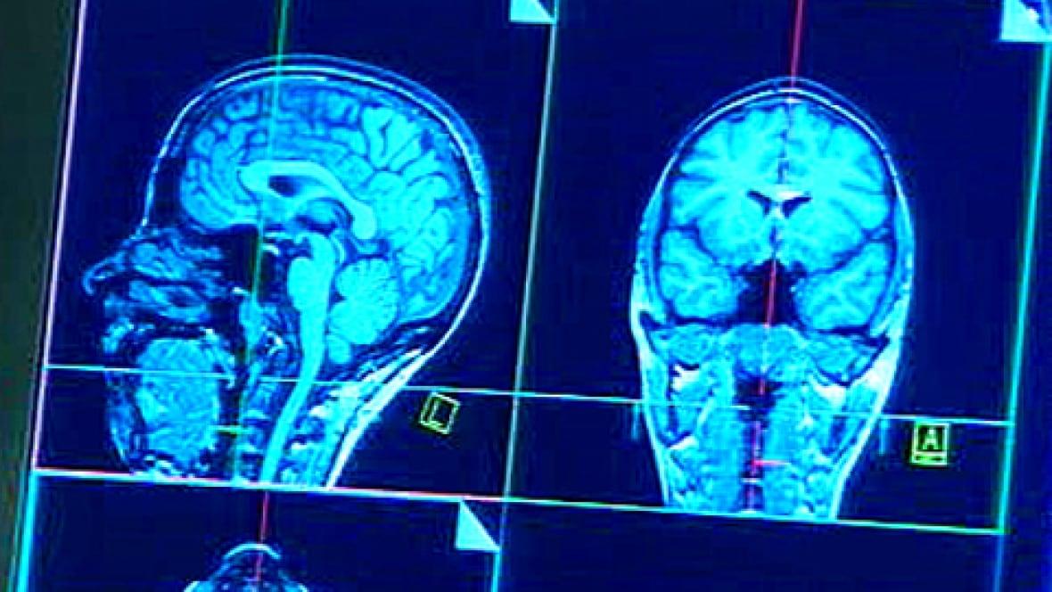 Как в домашних условиях лечить сотрясение мозга в домашних условиях