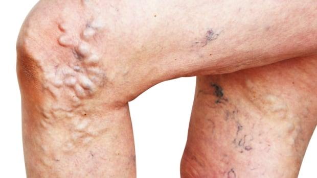Varicose Legs – Genetic Predisposition – Prevent Varicose Legs