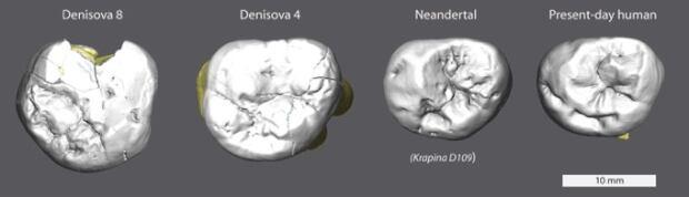 Denisova teeth