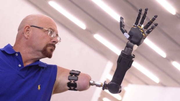 Johnny Matheny lost his arm to cancer, but using the the Myo armband from Kitchener's Thalmic Labs he's able to control a prosthetic arm with his brain.