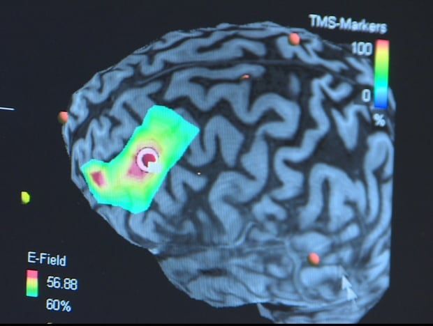 RTMS and the brain
