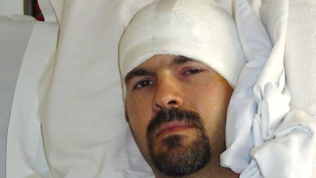 Greg Blundon, pictured here after his brain surgery in 2004, is questioning rules allowing a federal program to offset the costs of his private long-term disability insurance. The agreement leaves him with less money every month.