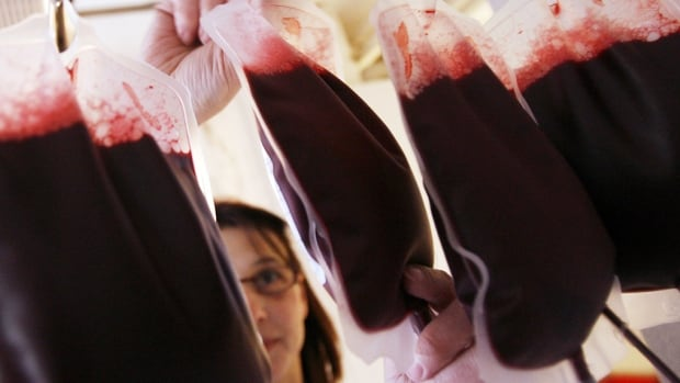 Health Canada lifted the lifetime ban on blood donations by gay men in 2013.