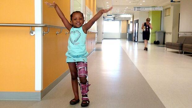 Waina Dorcelus has undergone 14 surgeries since her birth.