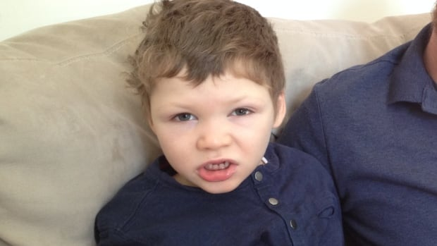 Liam McKnight, 7, has Dravet syndrome, which causes frequent seizures.