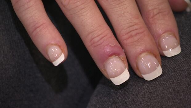Michelle Burns is awaiting test results following a nasty nick on a finger during a visit to a Regina nail salon.