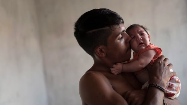 Brazil Zika Birth Defects