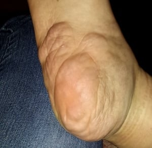 neurofibromatosis, tumor foot