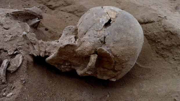 The remains of 27 Stone Age people slaughtered 10,000 years ago include this man, found lying prone in the lagoon's sediments. The skull has multiple lesions on the front and on the left side, consistent with wounds from a blunt implement, such as a club.