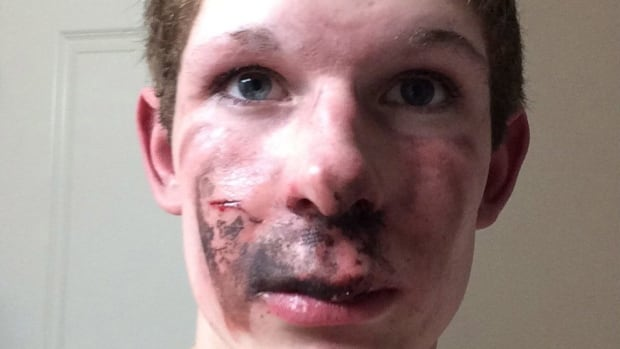 Ty Greer, 16, of Lethbridge, Alta., is shown in this handout image provided by his father Perry Greer. Greer says his son was using the device in a car last week in Lethbridge when an e-cigarette exploded.