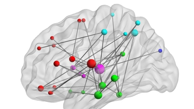 MEG imaging revealed unusual levels of connectivity between some brain regions in people with PTSD.