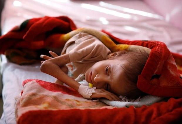APTOPIX Mideast War And Hunger
