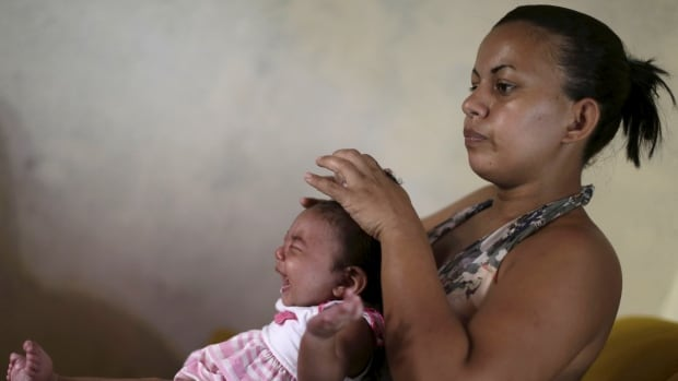 Rosana Vieira Alves holds her four-month-old daughter Luana Vieira, who was born with microcephaly, at her house in Olinda, Brazil on Feb. 3.