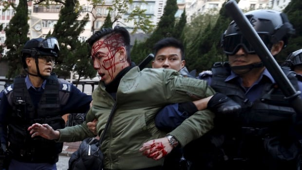An unidentified injured man is escorted by riot police at Mongkok in Hong Kong. Riot police used batons and pepper spray early on Tuesday to quell fights after authorities tried to move illegal street vendors.