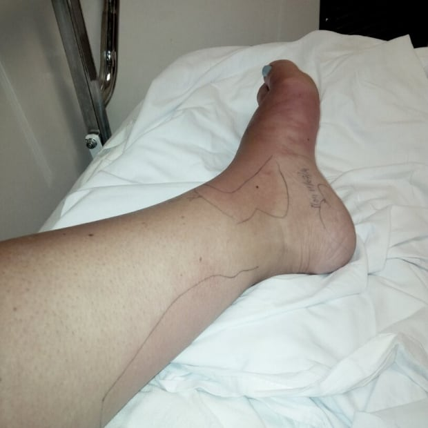 foot infection 3
