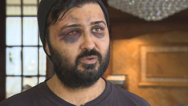 Reza Mokhtarian alleges he was kidnapped by about 10 men, beaten and then dumped in a ditch in Brampton, Ont., 15 hours later.