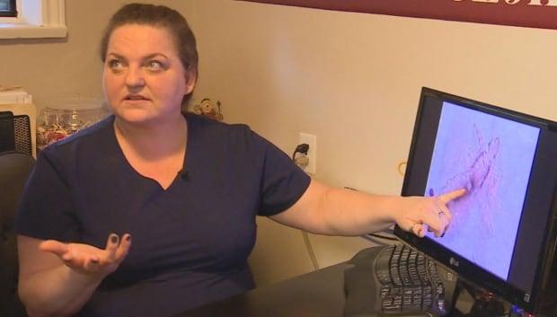 Lice 911 owner Barbara Pattison