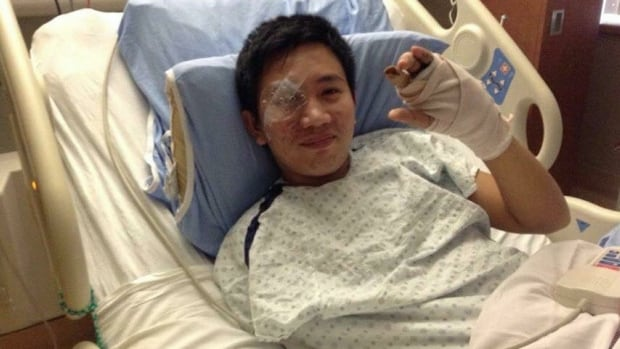 Jaysen Arancon Reyes shown recovering in Calgary's Foothills Medical Centre in 2013 after being shot in the face while working as a gas station clerk.