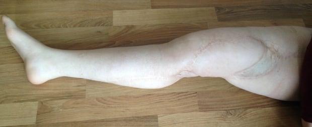 Amber Graveline's right leg