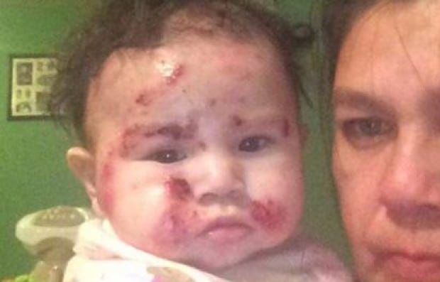 Kashechewan baby with skin rash
