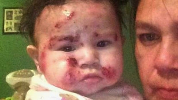 kashechewan baby with rash