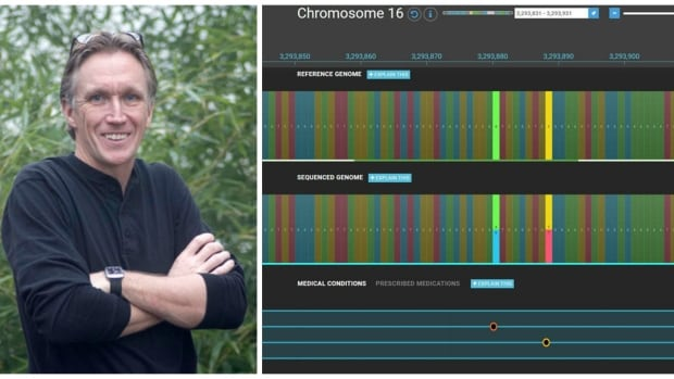 Greg Merhar self-diagnoses by sequencing his genome