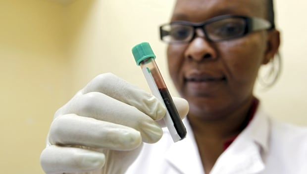 United States pledges $410m to fight AIDS in SA