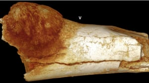 Fossil tumour is oldest evidence of ancient human cancer