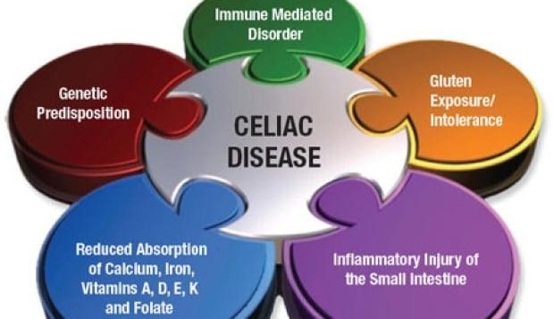 Carnivorous Plant Enzymes Could Help Celiacs Digest Gluten